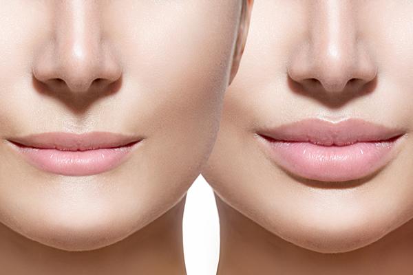 Lip Fillers Book online